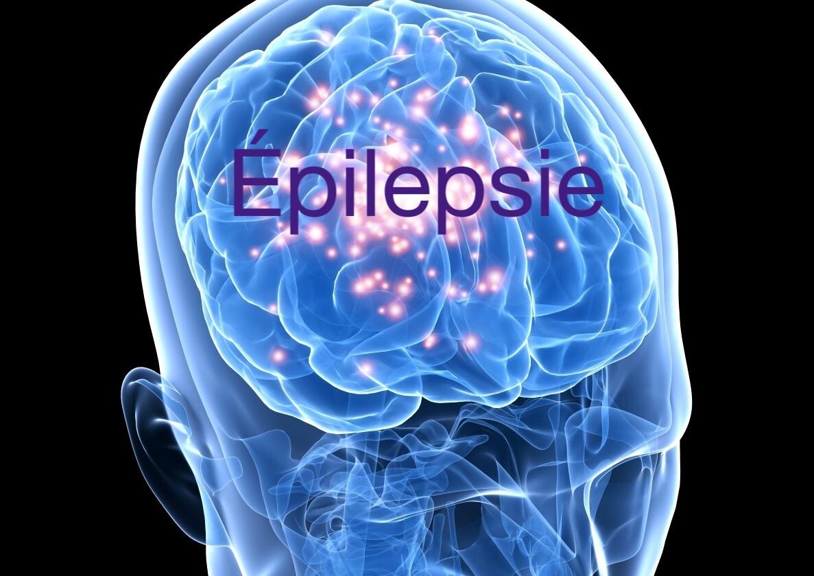 epilepsie-head_image